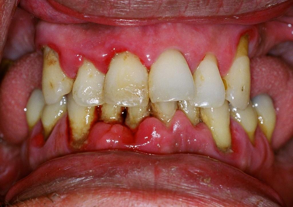 Loosening of Teeth Periodontitis